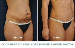 tummy-tuck-before-after-p1.jpg